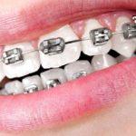 aparat-dentar-ieftin
